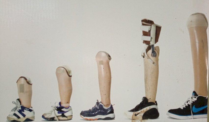 Below the knee Prosthetic Legs ( Custom Made)